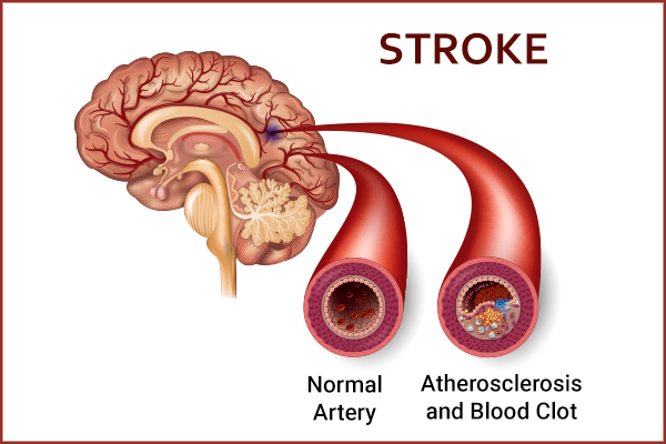 efficacy of blood thinners in stroke prevention