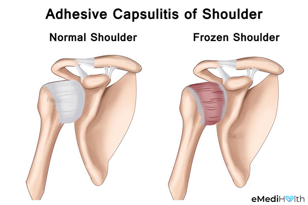 what causes a frozen shoulder?