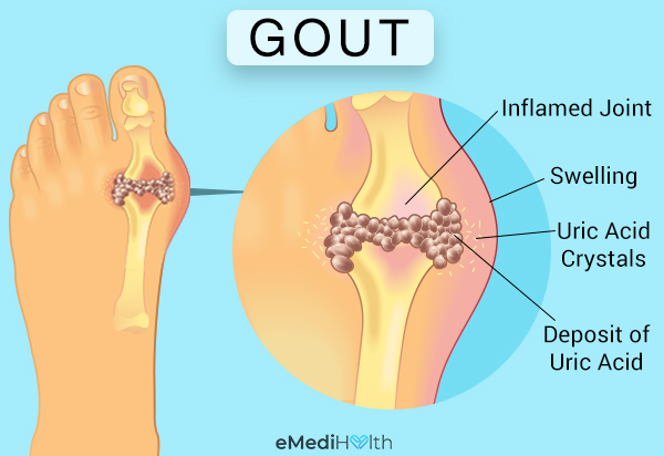 tissues affected by gout