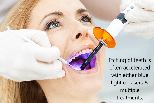 dental treatments for stained teeth