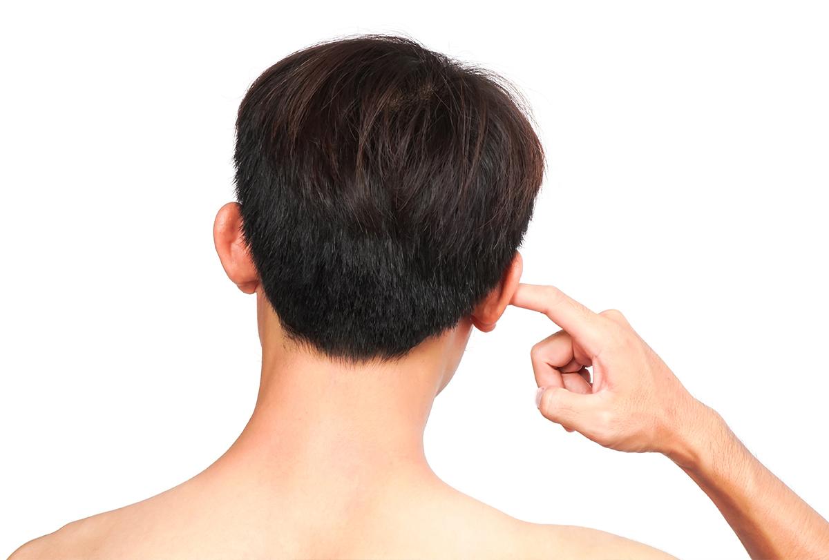 soothe itchy ears- Devon ear clinic Barnstaple