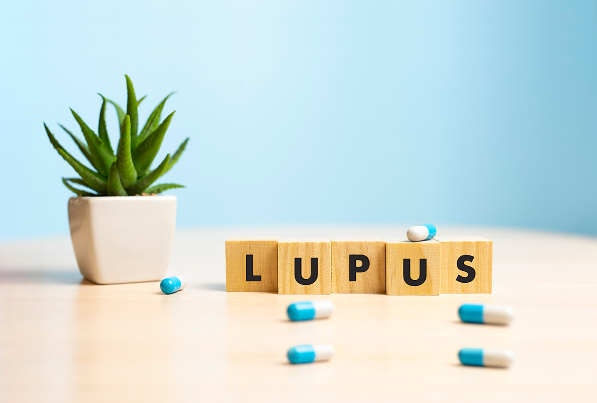 treatment options for lupus