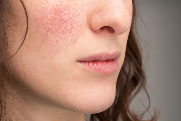 general queries about lupus