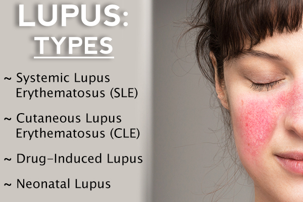 types of lupus