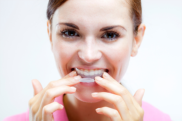otc products for teeth whitening