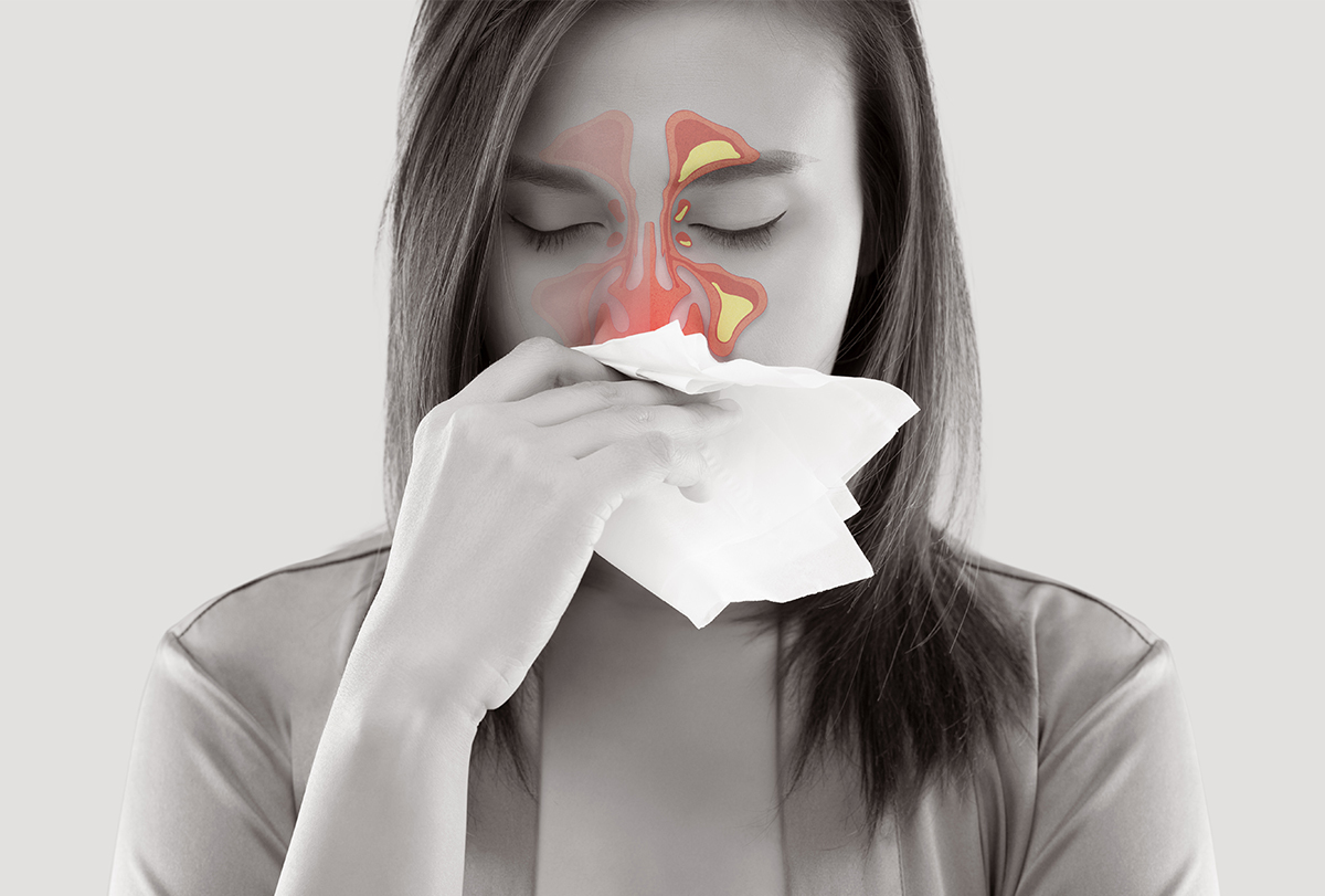 dealing with sinusitis