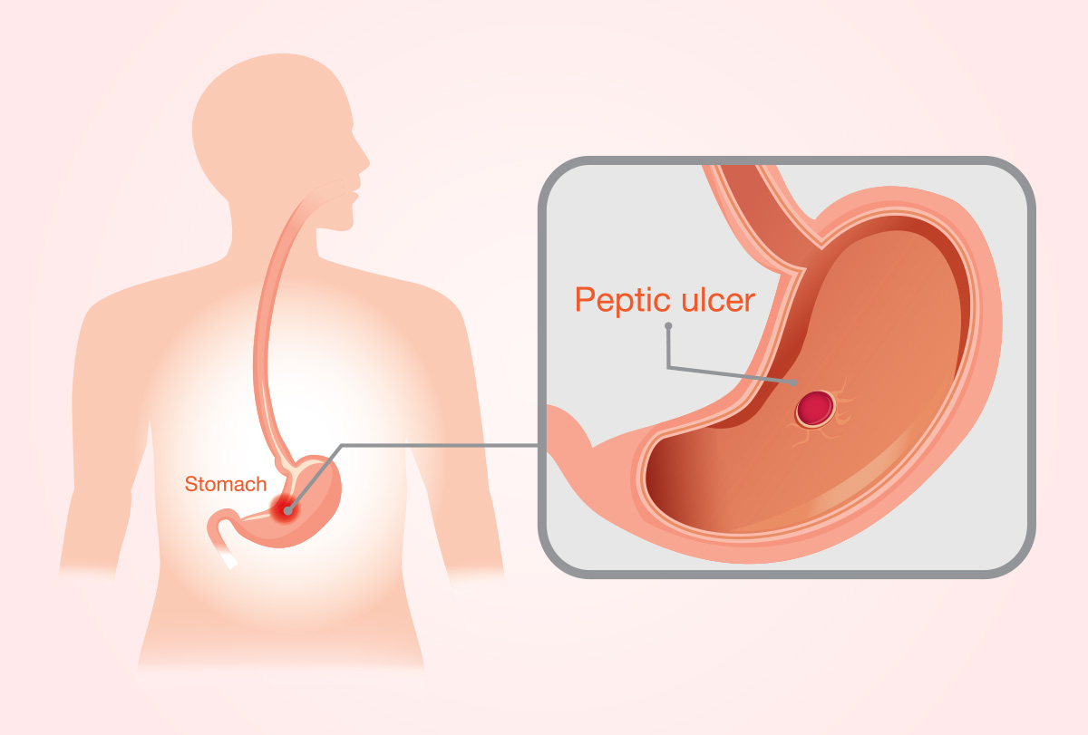 stomach ulcers