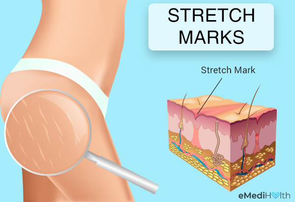 stretch marks: appearance and texture