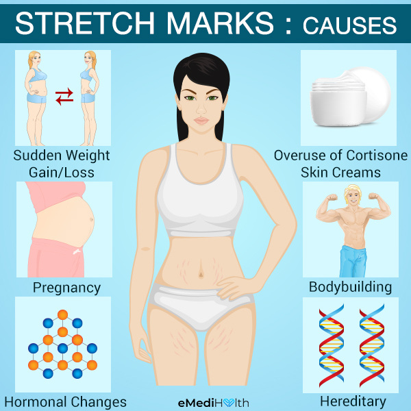 what causes stretch marks?