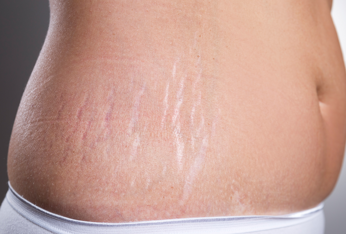 at-home remedies to remove stretch marks