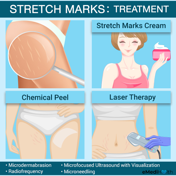 how to treat stretch marks?