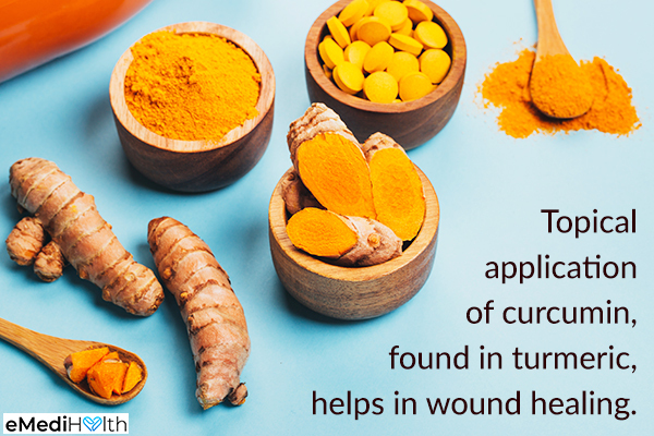 topical application of turmeric accelerates wound healing