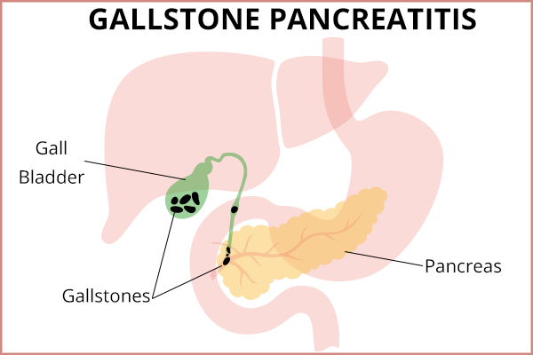 what causes gallstone pancreatitis?