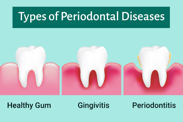 periodontal disease types