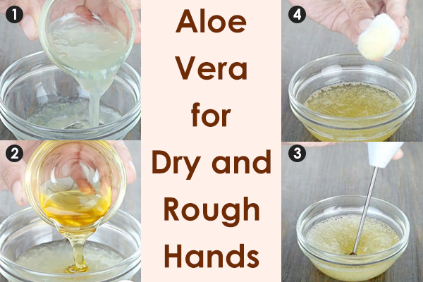 aloe vera gel can help moisturize dry skin of the hands