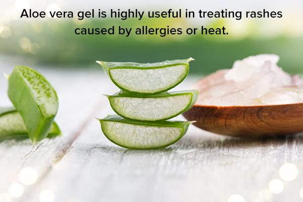 aloe vera gel can help soothe skin rashes