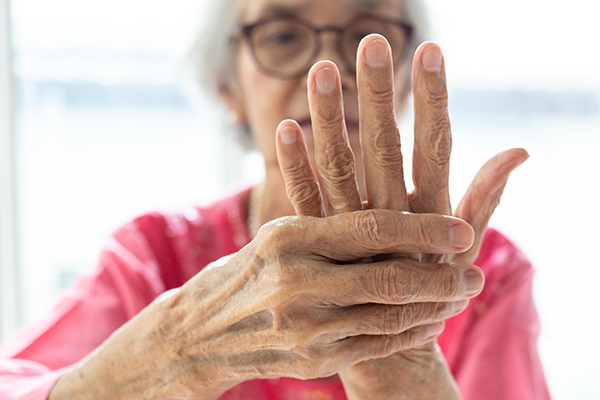 general queries about arthritis of the hand