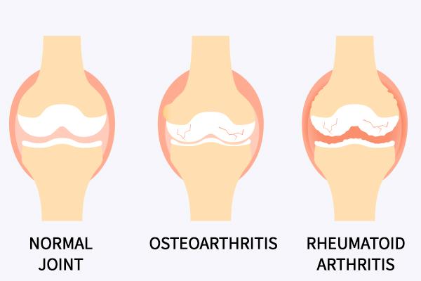 different types of hand arthritis