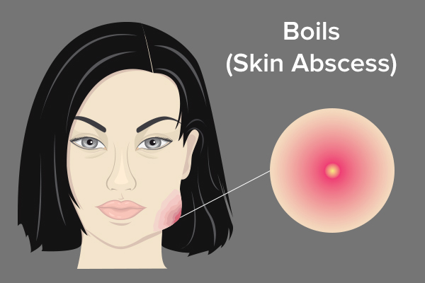 causes behind boils and abscesses