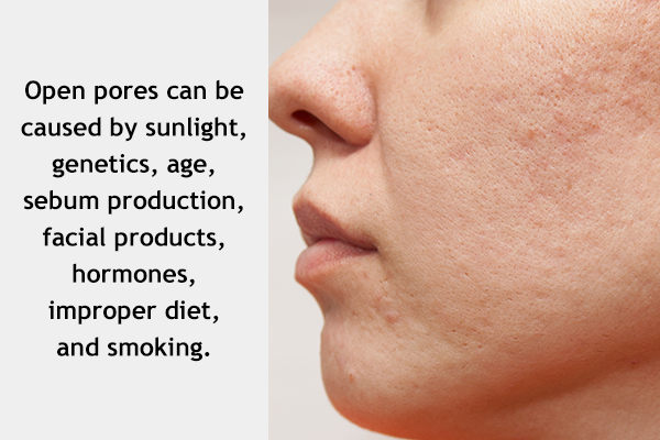 factors that can contribute to open pores