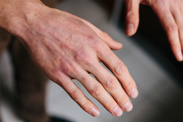 complications associated with dry skin