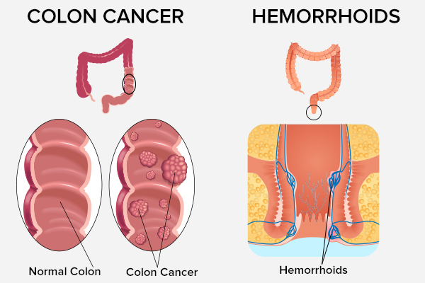 hemorrhoids versus colon cancer