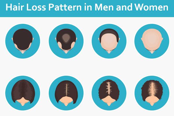 hair loss pattern in men and women