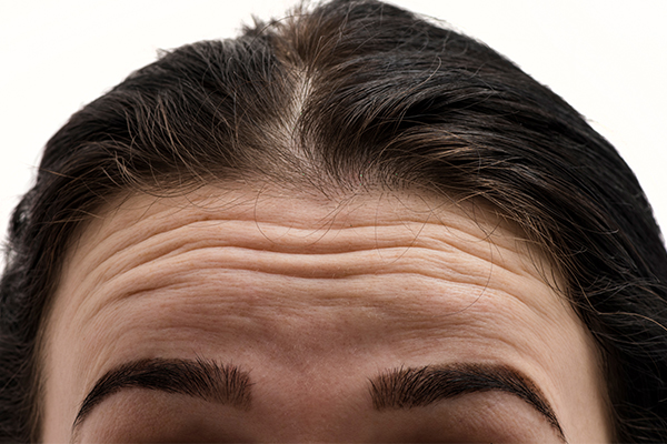 general queries about forehead wrinkles