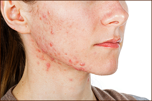 general queries about cystic acne