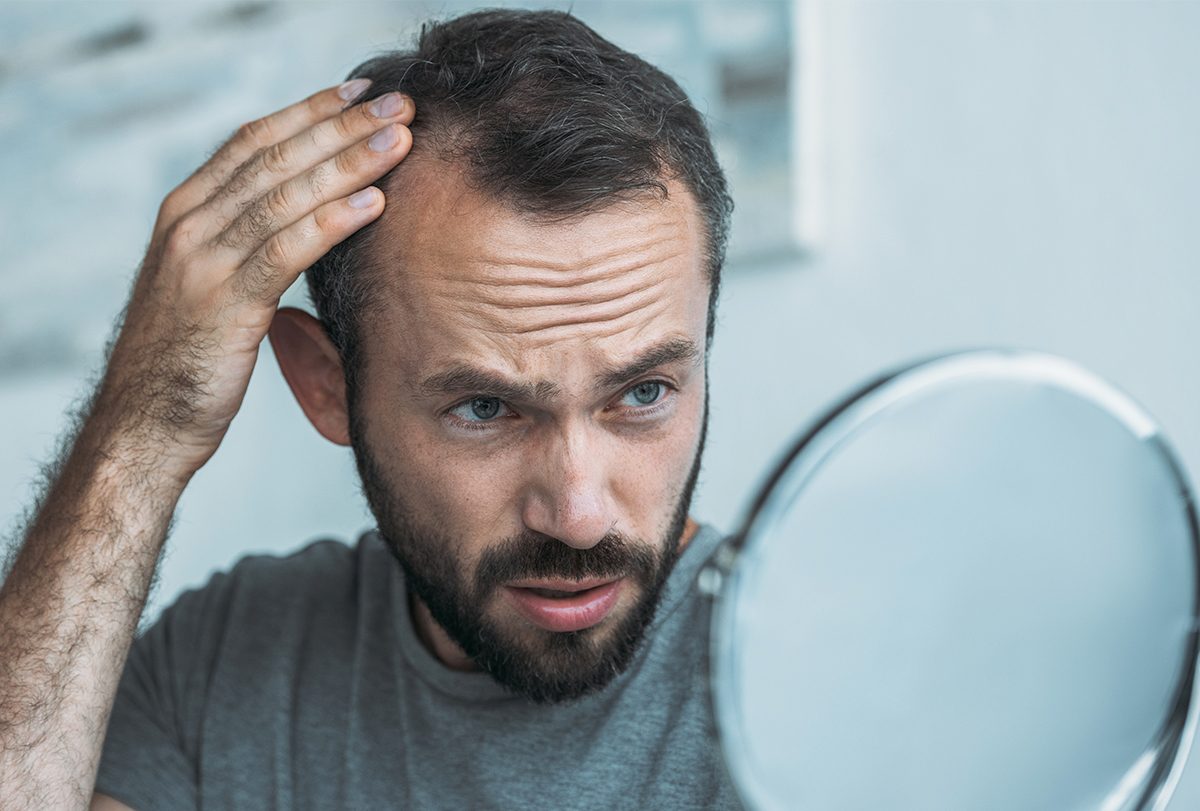 hair loss causes, symptoms, treatment and diagnosis