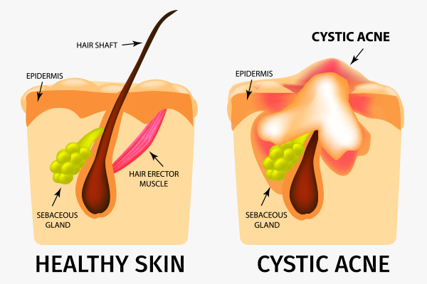 formation of cystic acne