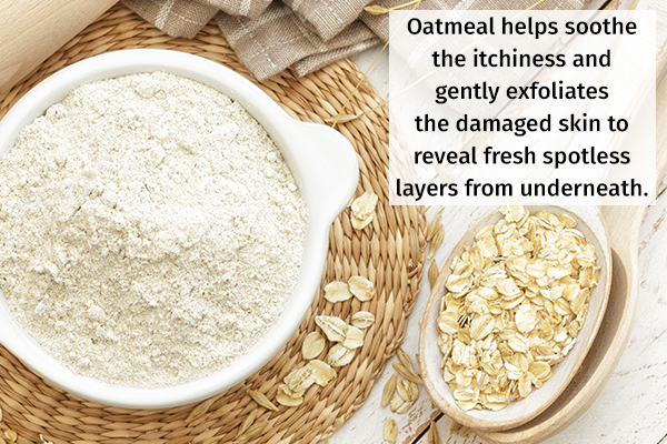 oatmeal helps soothe itchiness and eczema symptoms
