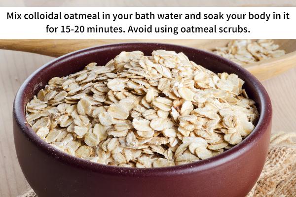 oatmeal bath for sunburn