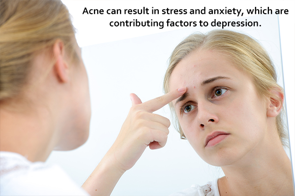 Psychological implications of acne