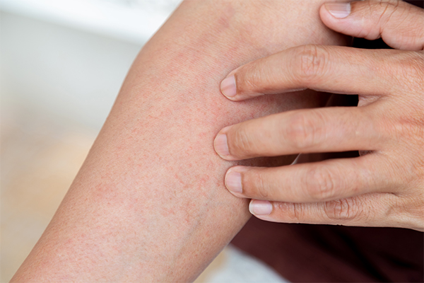 general queries about skin rashes