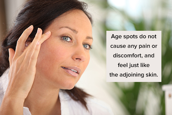 common symptoms associated with age spots