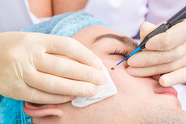 treatment of skin tags