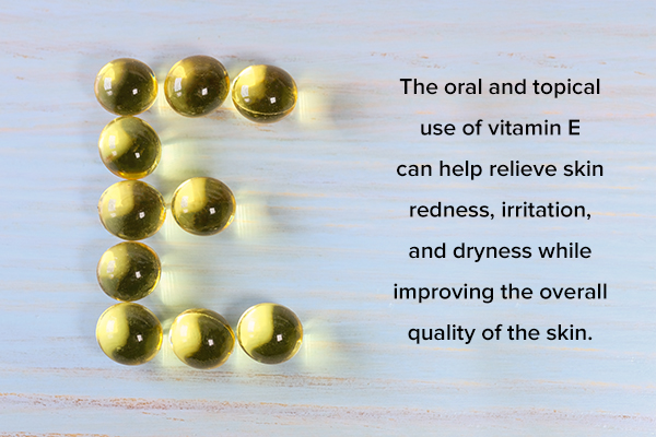 oral and topical use of vitamin E oil and capsules can help