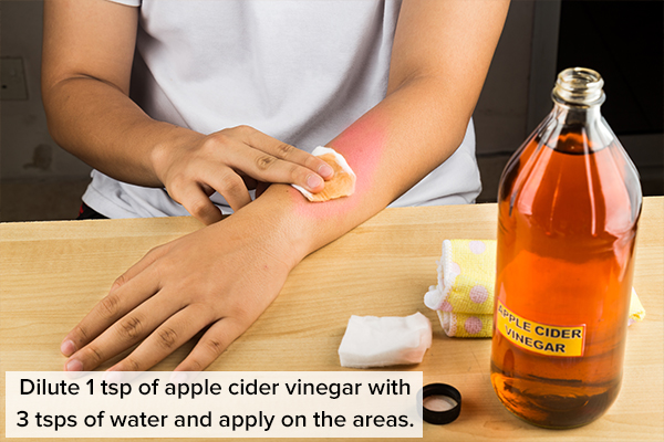 apple cider vinegar can help control and manage boils