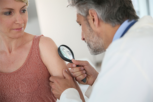 when to consult a doctor regarding skin rashes?