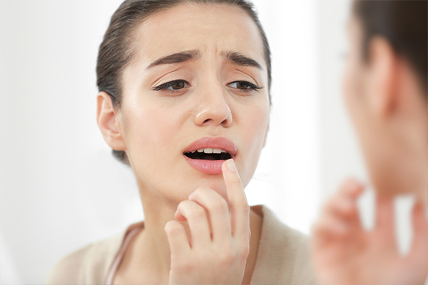 when to consult a doctor regarding chapped lips?