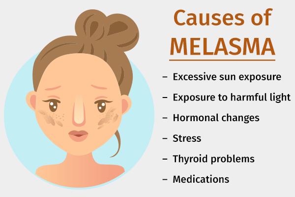 causes behind melasma