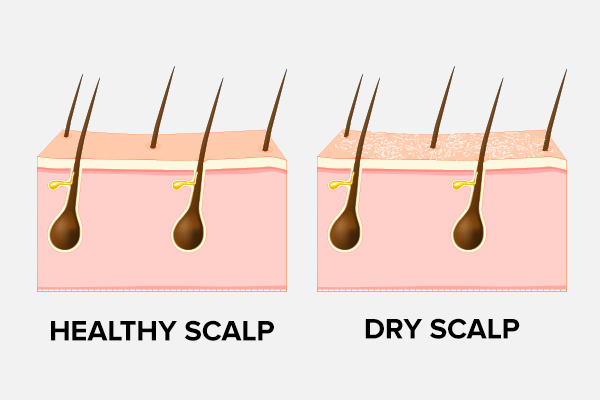dry scalp causes