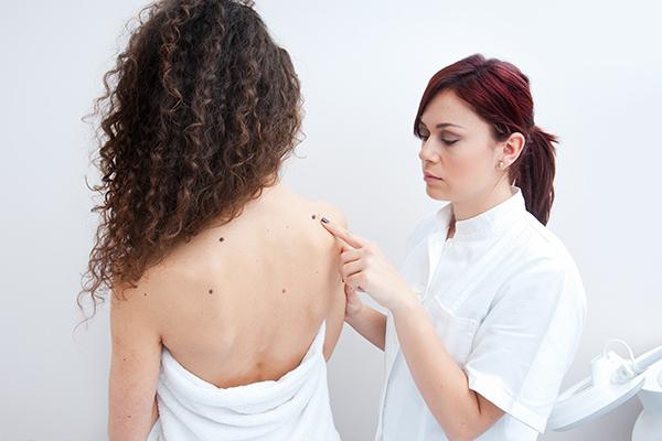 diagnosis of cancerous moles