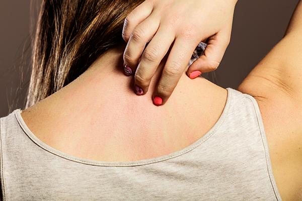 general queries about dermatitis