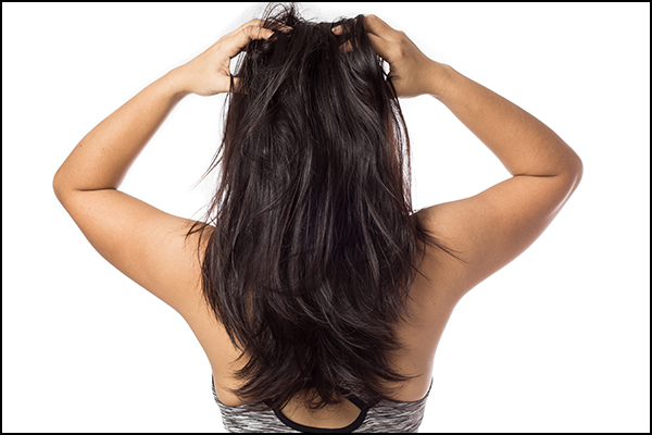 general queries about scalp dryness