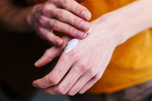 treatment options for dermatitis