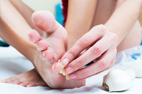 topical application of garlic can help curb hpv