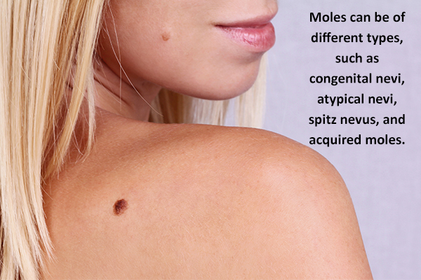 different types of moles
