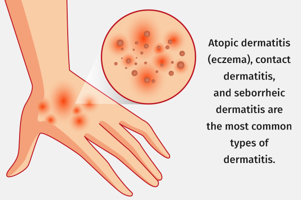 different types and causes of dermatitis